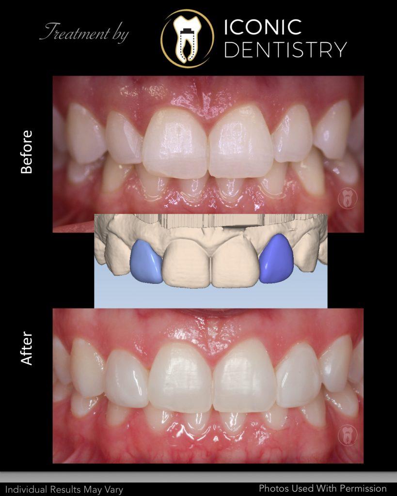 CAD - CAM Dentistry